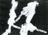 大腸菌0-14株 リウマチの要因の一つであるプロテウス菌